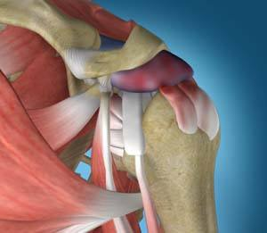 Shoulder Impingement